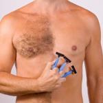 Волосатость или гипертрихоз