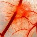 Нейроциркуляторные дистонии